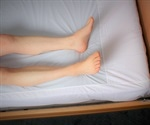 Using Low Friction Fabric to Relieve Bed Sores