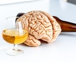 Boozing leads to small brains or people with small brains drink more?
