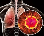 Patients with diabetes may have worse lung infections