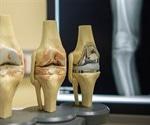 Osteoarthritis Complications
