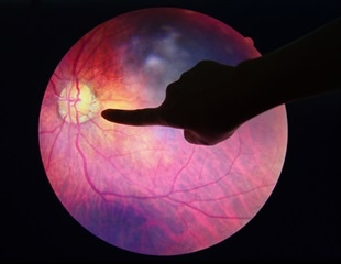 AI detects over 95 percent of diabetic retinopathy cases