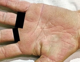 Woman's velvety tripe palms turn out to be a sign of lung cancer
