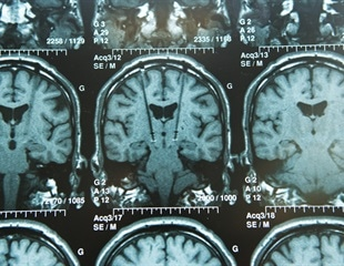 Swimming a 'no-no' for those undergoing deep brain stimulation therapy