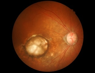 Age-related macular degeneration (AMD) may affect 77 million Europeans by 2050