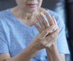 Methotrexate reduces joint damage in hand osteoarthritis