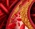 Heart-healthy diet is low in cholesterol, says AHA yet again