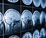 Study shows 53% of homeless people have suffered a traumatic brain injury