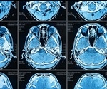 Artificial Intelligence and Machine Learning in Medical Imaging