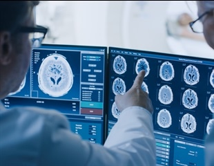 Artificial Intelligence (AI) in Cancer Care