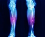 Causes and Symptoms of Bone Cancer