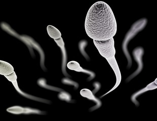 Why some sperm swim in circles – it's a protein defect