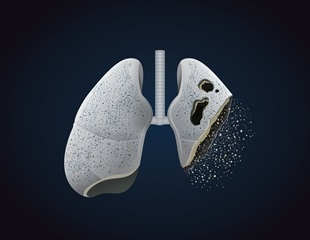 A woman has developed rare form of lung metal-scarring from vaping