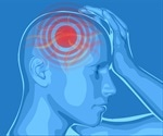 Does the Location of a Headache Matter?