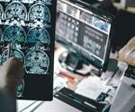 Experimental Alzheimer's drugs show promise