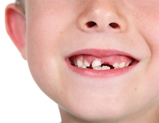 Scanning children's teeth may predict future mental health issues