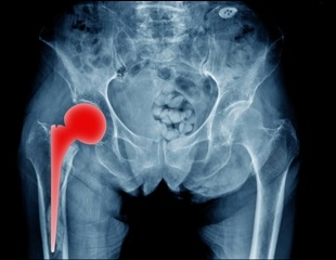6 out of 10 hip replacements last 25 years or longer, according to a new study