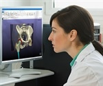 Synopsys release new software for implant design and patient-specific planning