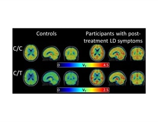 Advanced scan shows brain inflammation related to post-treatment Lyme disease syndrome