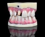Stratasys' new J720 Dental 3D printer sets new standards for digital dentistry