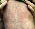 Measles alert at Sydney airport