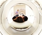 Researchers map an awake-brain