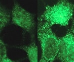 Causes of disease including infant cancer can be revealed with new tool from Princeton University research team