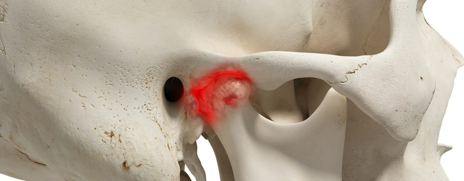 TMJ disorders could be treated with tissue-engineered implants after successful animal study