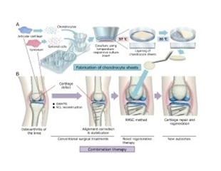 Researchers report new regenerative medicine approach for treating osteoarthritis of the knee