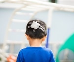 Experts issue new treatment guidelines for traumatic brain injury in children
