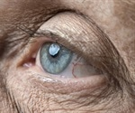 Low levels of certain eye proteins could serve as predictor for Alzheimer's