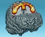Brain training to strengthen the brain's neural network