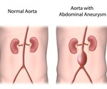 Abdominal Aortic Aneurysm (AAA): Causes, Symptoms, & Management