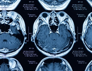 Obesity linked to a reduction in gray matter