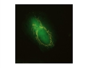 Damaged mitochondria use 'eat me' signals for mitophagy