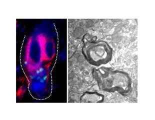 Stem cells in hair follicles have potential to regenerate myelin sheath that coats neurons