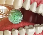 Gum disease bacterium releases toxins that may cause Alzheimer's