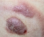What is Cutaneous T-Cell Lymphoma?