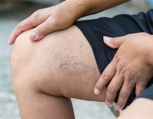 Early treatment for venous leg ulcers delivers clinical benefits and cost savings