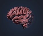 Increased brain cell activity boosts protein linked to Alzheimer's disease