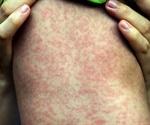 U.S. measles outbreak worst in 25 years