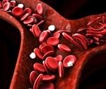 Hereditary Spherocytosis Related Disorders