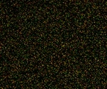 Plasmon-enhanced Fluorescence Spectroscopy