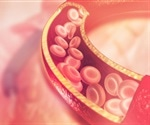 Multivitamin and mineral supplements do not prevent cardiovascular diseases