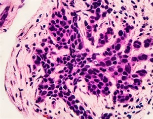 Targeted breast cancer therapy shows 'encouraging' results