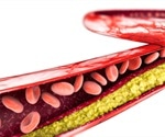 Novel role for cholesterol inside the cell