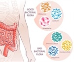 Fibromyalgia and Gut Health: SIBO and IBS