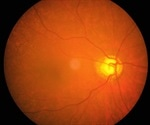 Long-term statin use linked to lower risk of glaucoma