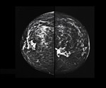 3D mammograms increasing in popularity for breast cancer screening in the USA