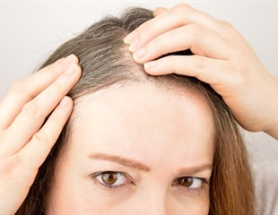 Hair loss could soon be a thing of the past, say researchers