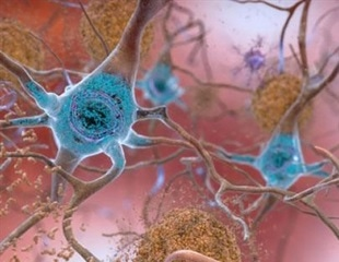 Altered protein and mutated clusters of genes in Alzheimer's disease